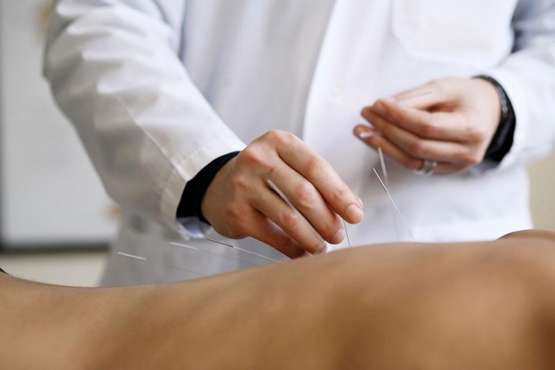 Иглорефлексотерапия для взрослых