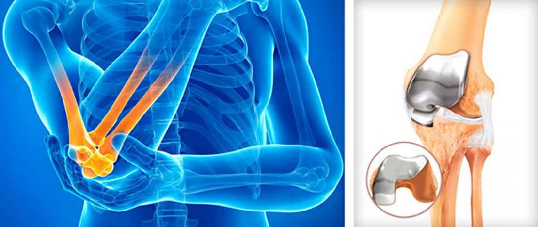 лечим остеоартроз локтевого сустава